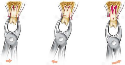удаление корня зубов