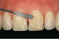 Этапы реставрации зубов пломбировочным материалом