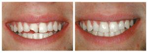 Восстановление и реставрация зуба